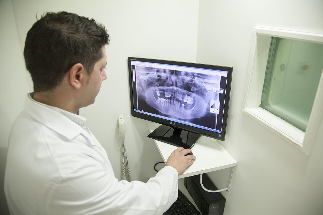 Na czym polega RTG zębów?